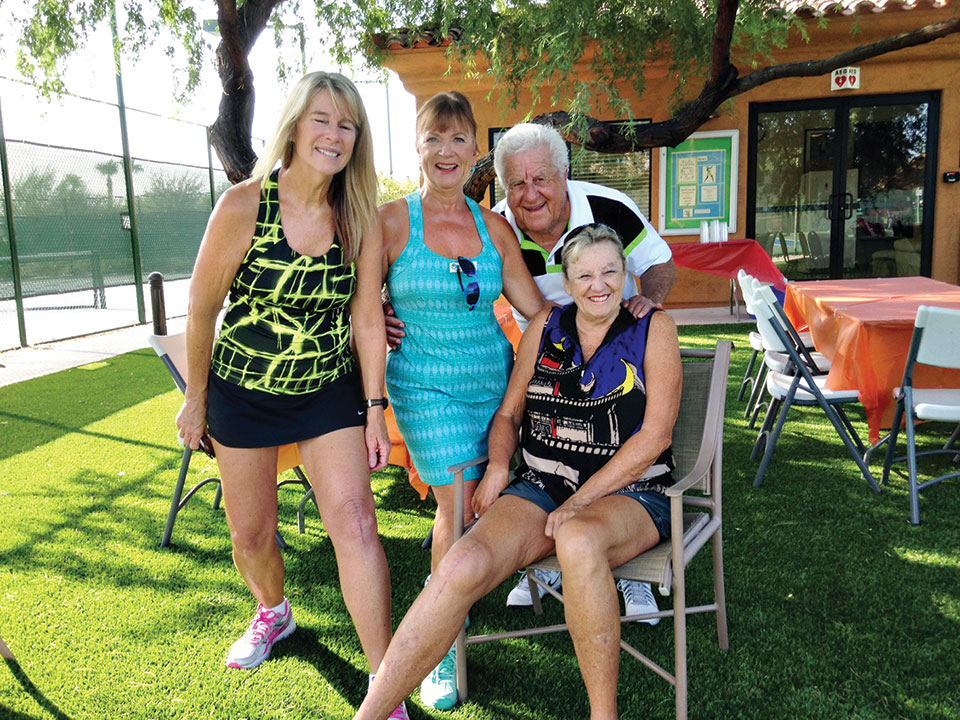 Tennis club members Vikki Constable, Susie Anderson, Jerry Santy and Suzanne Schultz relax after a club mixer as Vikki and Suzanne show the knee surgeries that will get them back on the courts soon.